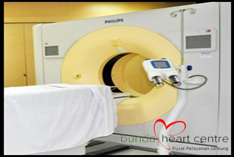 Cardiac CT - Scan